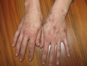 Hands with meth sores